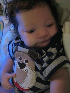baby Mason after fundo surgery