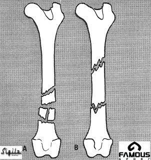 Processo de reparação dos ossos