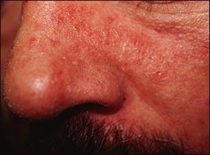 Los análisis a los alérgenos a atopicheskom la dermatitis