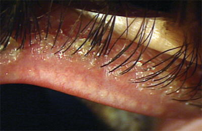 Demodex according to http://www.optometric.com/article.aspx?article=102974