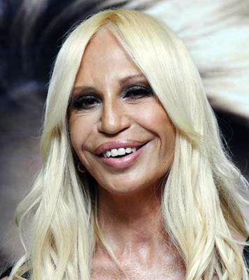 awful plastic surgery. Donatella Versace Awful Plastic Surgery: Just awful !!! Her Lips is horrible and imperfect facelift.