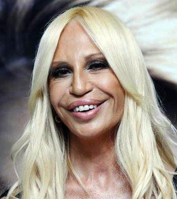 awful plastic surgery. Donatella Versace Awful Plastic Surgery: Just awful !!! Her Lips is horrible and imperfect facelift.