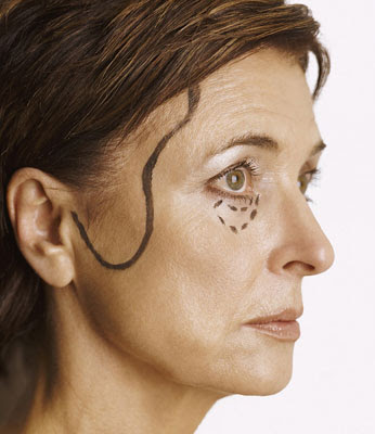 Care after Eyelid Surgery