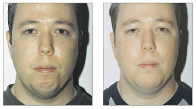 Chin Augmentation Before And After Pictures