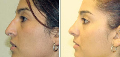 Rhinoplasty Pictures