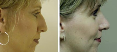 Rhinoplasty Picture