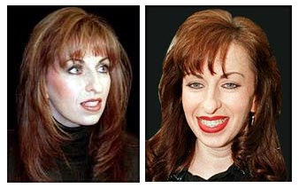 Paula Jones Nose Job