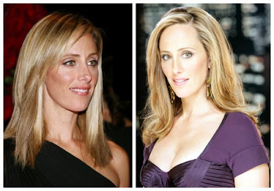 Kim Raver Nose Job Rhinoplasty
