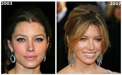 Jessica Biel Nose Job