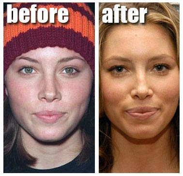 lady gaga before and after nose job. Jessica Biel Nose Job