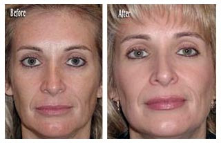 Microdermabrasion Before And After