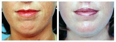 Chin Augmentation Pictures