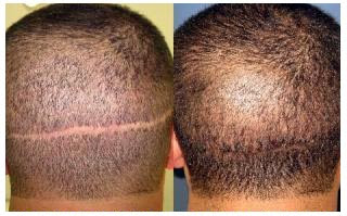Scar Revision Before And After
