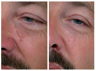 Plastic surgery before and after scar revision before and after scar revision before and after sciox Choice Image