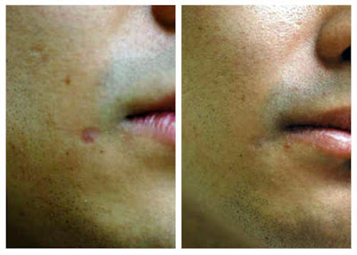 Scar Removal Before And After