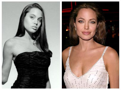 Filed under: Angelina Jolie, Angelina Jolie nose job, plastic surgery