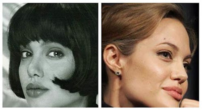 Angelina Jolie Nose Surgery