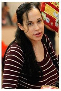 Nadya Suleman Lips