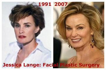 Jessica Lange Face lift