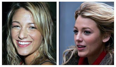 Blake Lively  on Plastic Surgery Before And After  Blake Lively Plastic Surgery