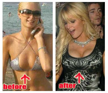 Shoulders down Paris hilton fake tits abstract