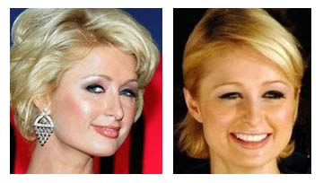 plastic surgery before and after paris hilton plastic surgery