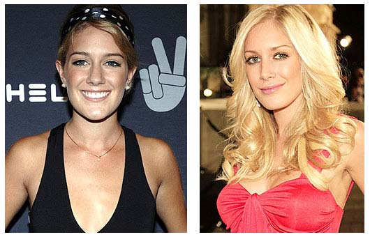 heidi montag before and after plastic surgery 2010. heidi montag before and after