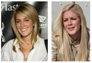 Heidi Montag Plastic Surgery Photos