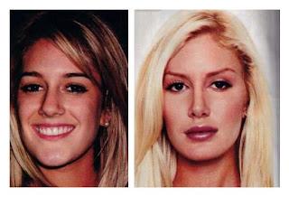 Heidi Montag Plastic Surgery Pictures