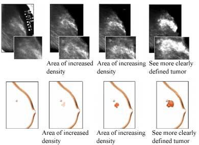 breast labeling ultrasound