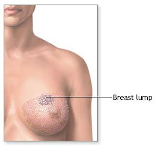 Breast Cancer Lump