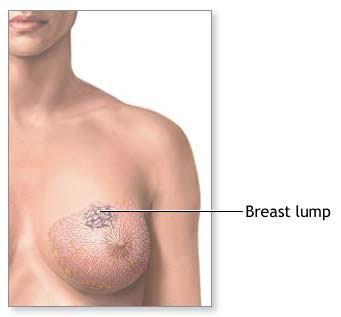 That Lumps around nipples opinion