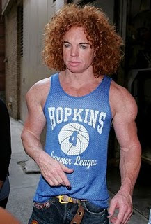 Carrot Top Steroid | Carrot Top Plastic Surgery Pictures