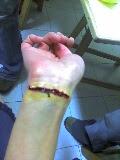 Primeros auxilios en heridas graves