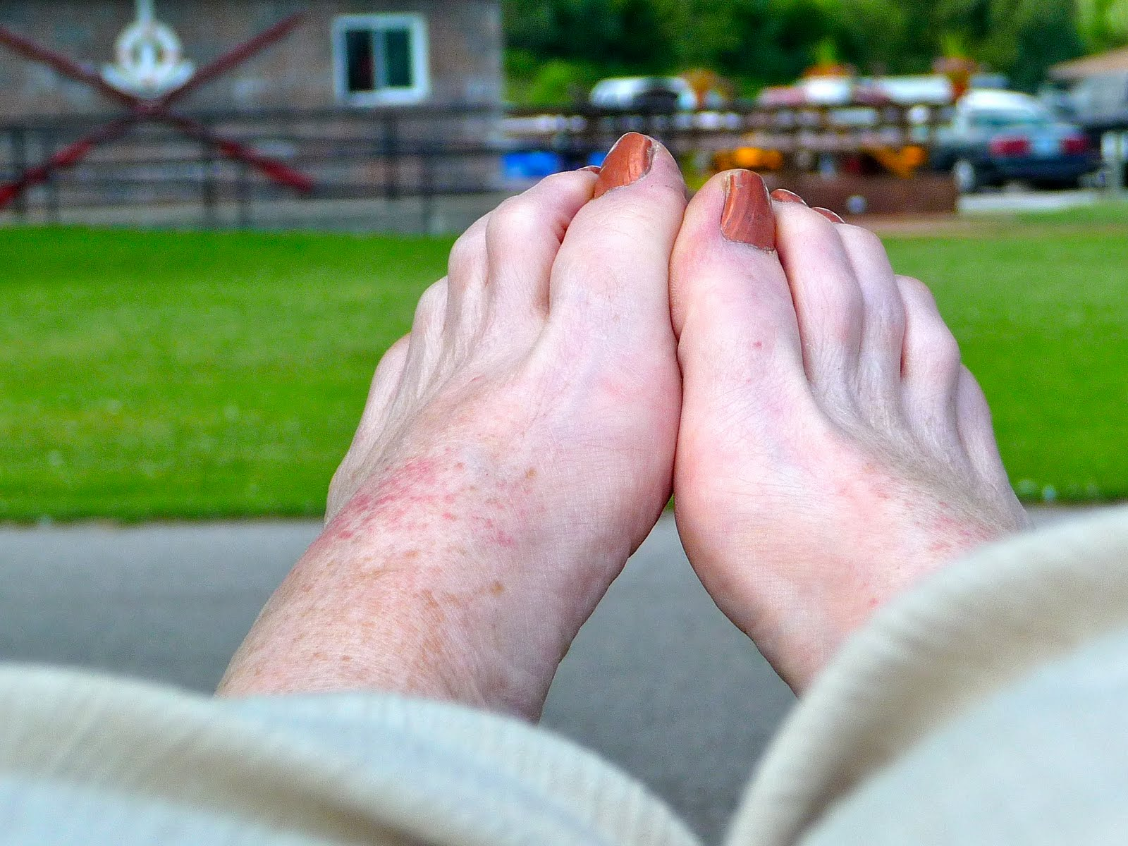 heat rash on foot pictures #10