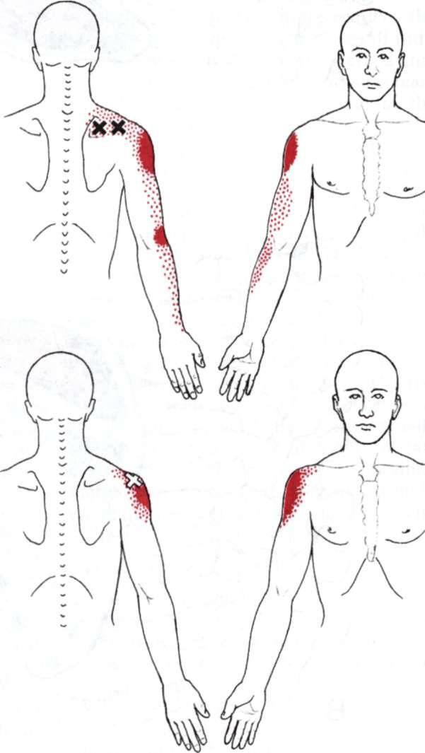 Super Prof. Alexandre Souza - Fisioterapeuta: Tratamento da dor crônica  DH27