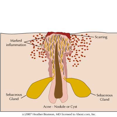 Czeshop Images Cystic Acne Diagram