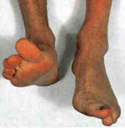 Doctors Gates: Foot Drop: causes and treatment