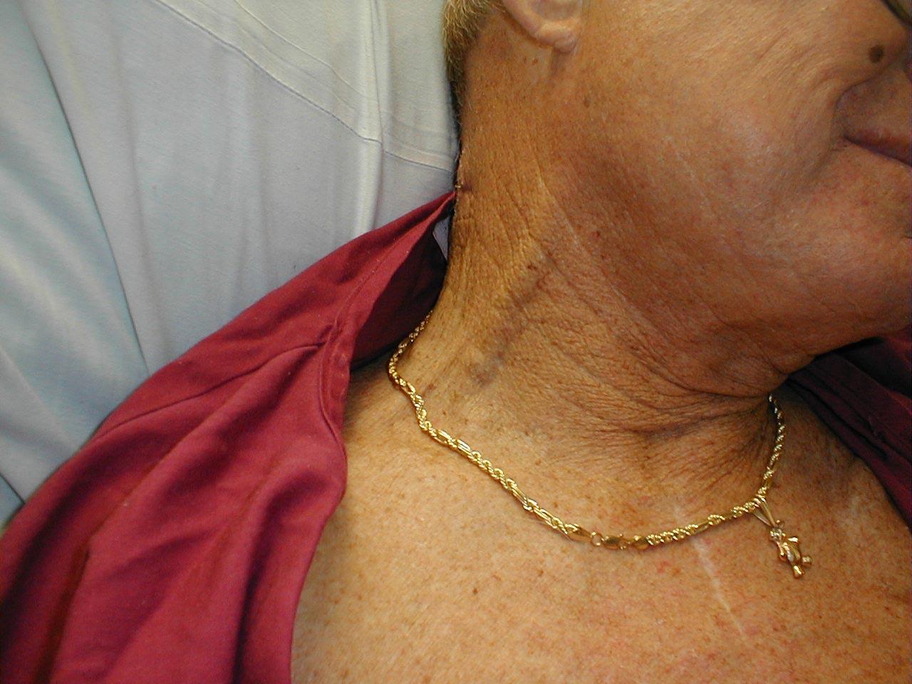 Doctors Gates: External Jugular Vein Distention
