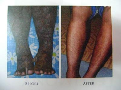 Psoriasis berlaku apabila kadar pembahagian sel kulit melebihi kadar penanggalan sel kulit mati 2