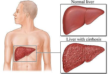 hiatal hernia symptoms like heart attack