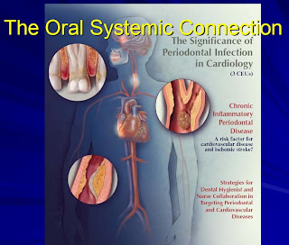 Oral Systemic Cardiovascular Health May Impact Brain