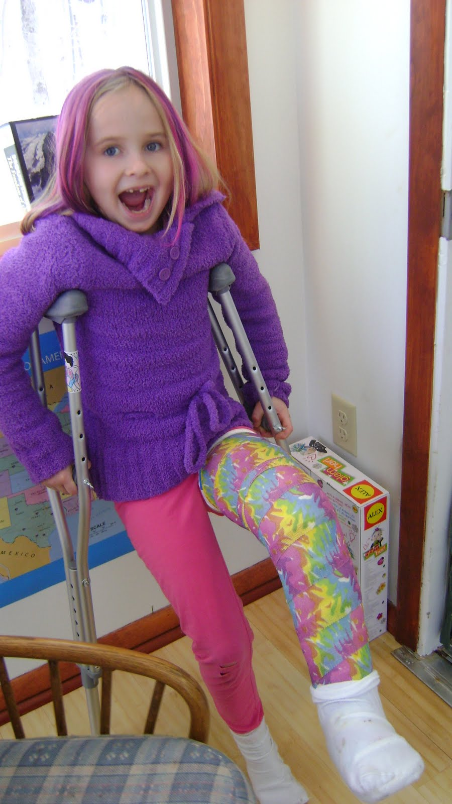Colored cast - Friday February 4 2011