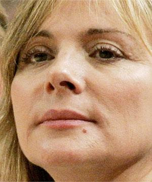 Kim Cattrall Fat Injections