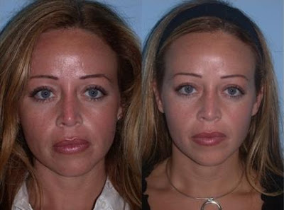 chemical peel woman before after