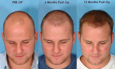 Hair loss medical treatments