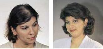 Hair transplant -Before and After