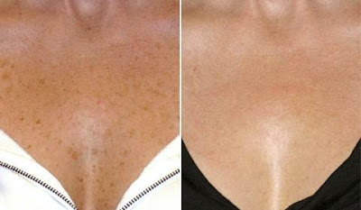 Fraxel Laser before and after