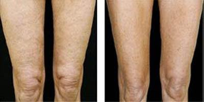 Thermage legs