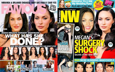 Megan Fox Surgery Magazine
